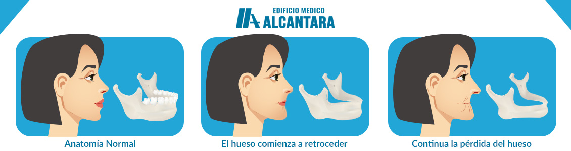 Consecuencias de no Utilizar Implantes Dentales