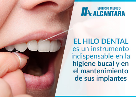 Implantes Dentales Limpieza con Hilo Dental