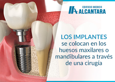 Proceso de Implantes Dentales