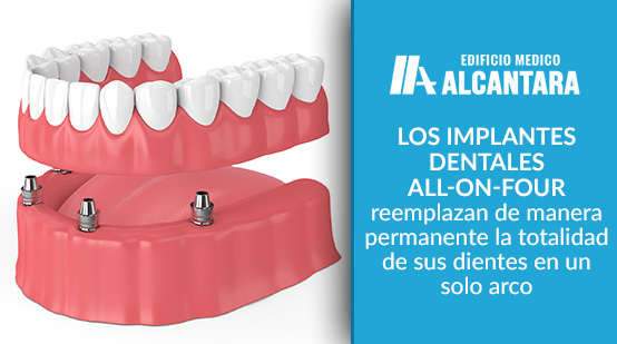 Implantes Dentales con All On FOur