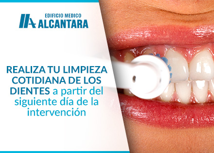 Implante Dental Higiene Bucal Chica Realizando Limpieza Dental