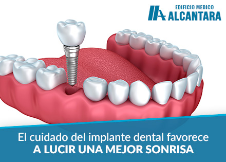 Implante Dental Higiene Bucal 3D Render de Implantación
